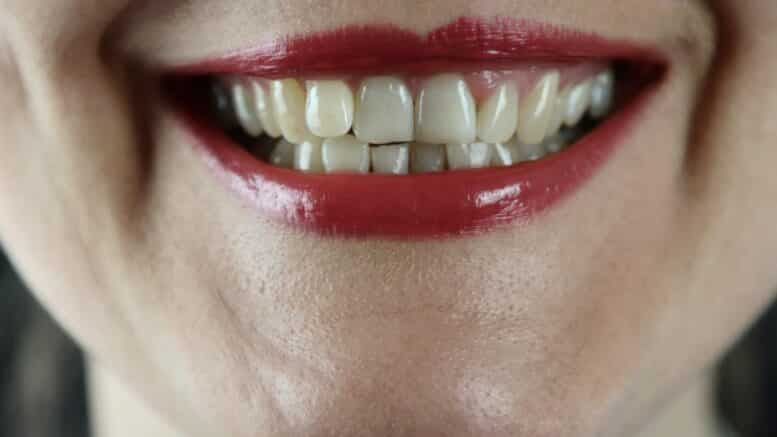 Dental Grants for Recovering Addicts