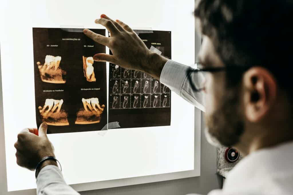 How do I Get Free Dental Implants