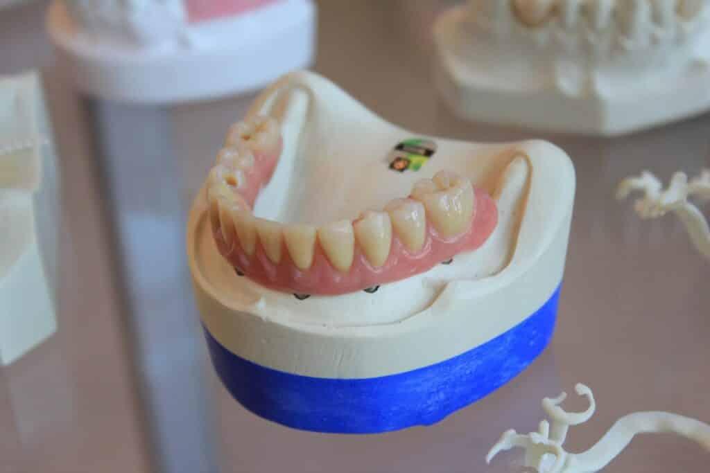 Dental Grants for Single Mothers - Medicaid for Dental Care