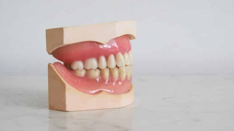 Free dental Implants for Recovering Addicts