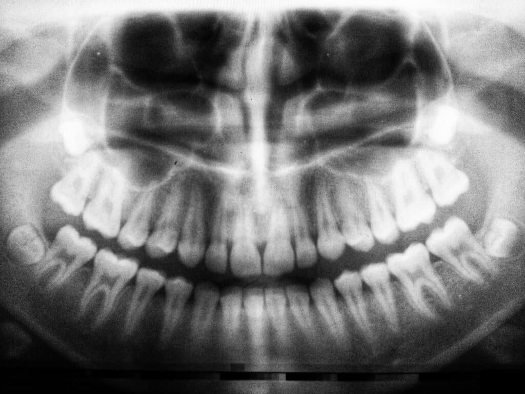 Free dental Implants for Recovering Addicts - Bad Effects