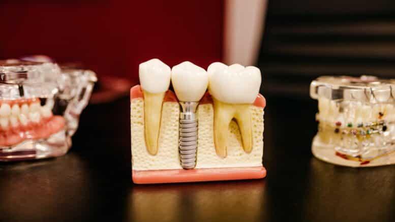 Dental Grants for Senior Citizens