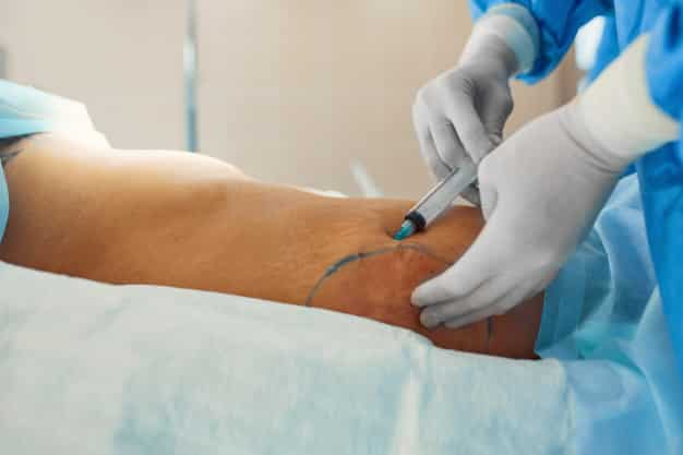 Grants for Plastic Surgery after Weight Loss