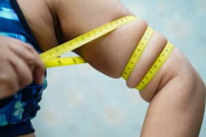 Grants for Plastic Surgery after Weight Loss - Public Funder