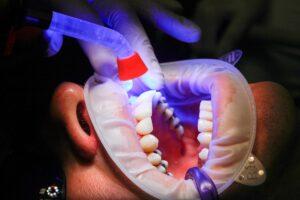 Dental Grants in Florida - Dental Grants