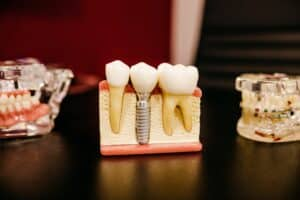 Dental Grants in Arizona - Dental Grants