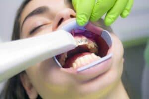Dental Grants in Alabama - how to apply for dental grants?