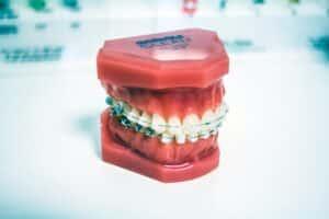 Dental Grants in Arkansas - Improving Oral Health