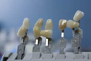 Dental Grants in Illinois - How to apply for the grants?