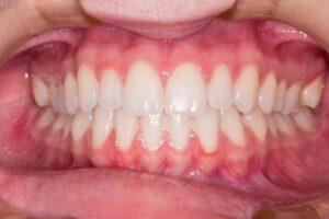 Dental Grants in North Carolina - Spreading Healthy Smiles
