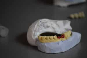 Dental Grants in Utah - Oral Care Services for those in Need