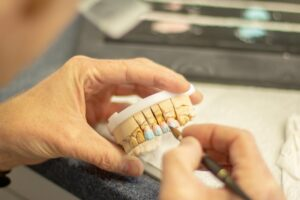 Dental Grants in Mississippi - Dental Help for those in need