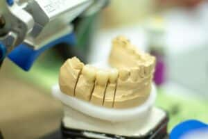 Dental Grants in Michigan - How to apply for the dental grants?