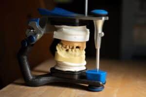 Dental Grants in North Carolina - Dental Grants for the Needy