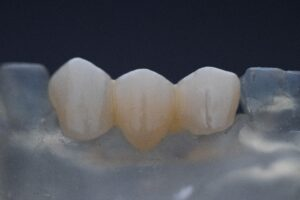 Types of Dental Implants Cost - Treatment Methods