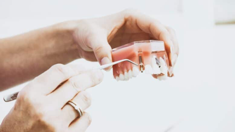 Types of Dental Implants Cost