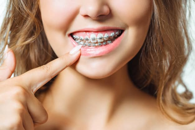 Grants for Braces - Where to Apply?