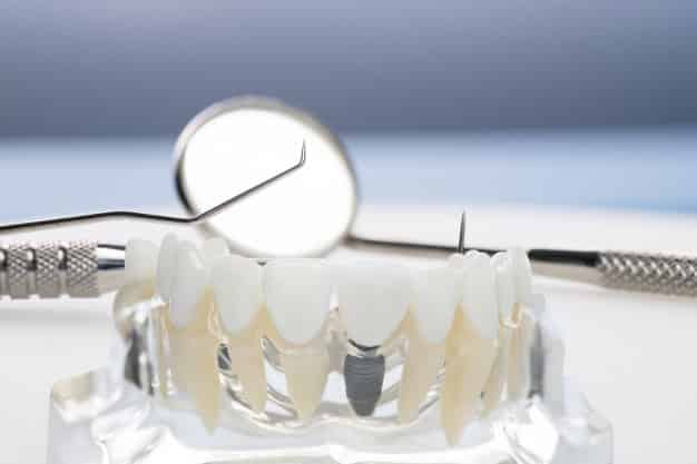 Grants for Dental School - Attending Dental School
