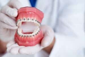 Grants for Braces - Improving Smiles