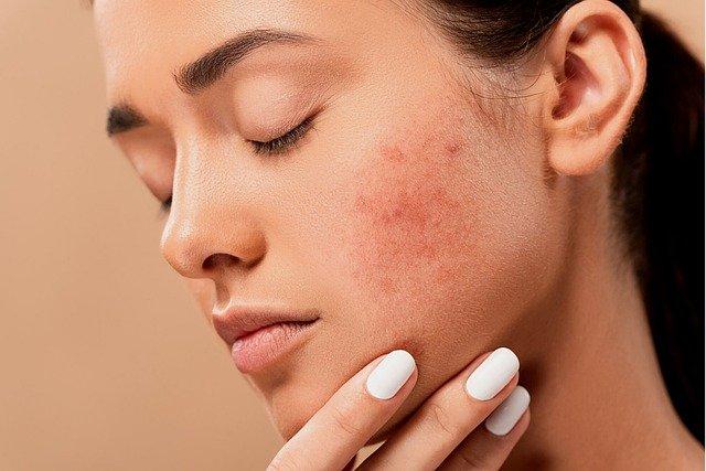 Best Dermatology Schools