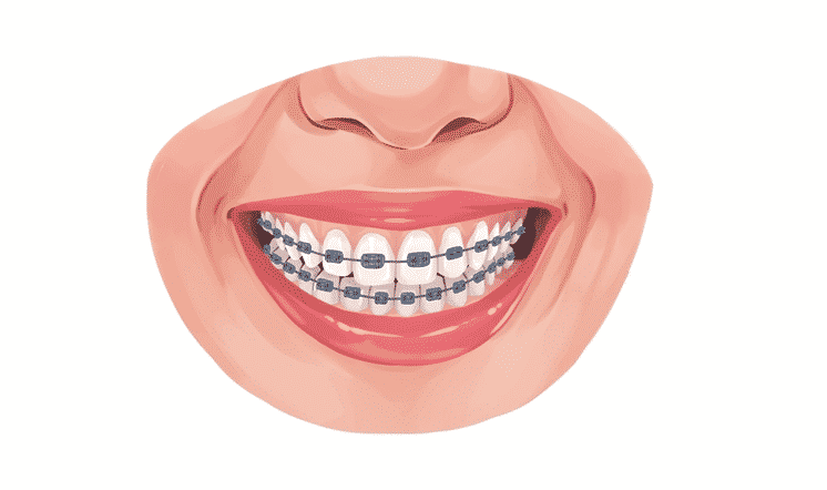 Does Medicaid Cover Braces