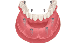 Does Medicaid Cover Dental Implants