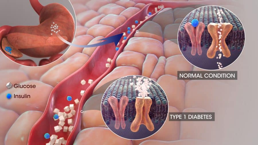 Type 1 Diabetes Mellitus Clinical Trials - What is Type 1DM