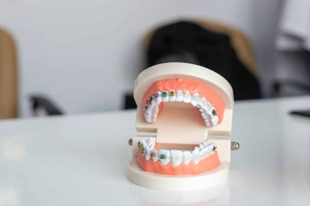 What are the treatments present to replace damaged or lost teeth